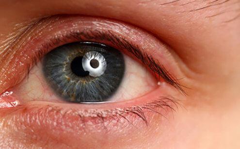 Alerjik Konjonktivitin Nedenleri Nelerdir