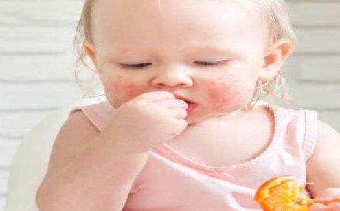 Hangi Yiyecekler Oral Alerji Sendromuna Neden Olur