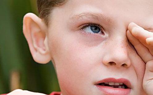 Akut Alerjik Konjonktivitte İlaç Tedavisi Nasıldır